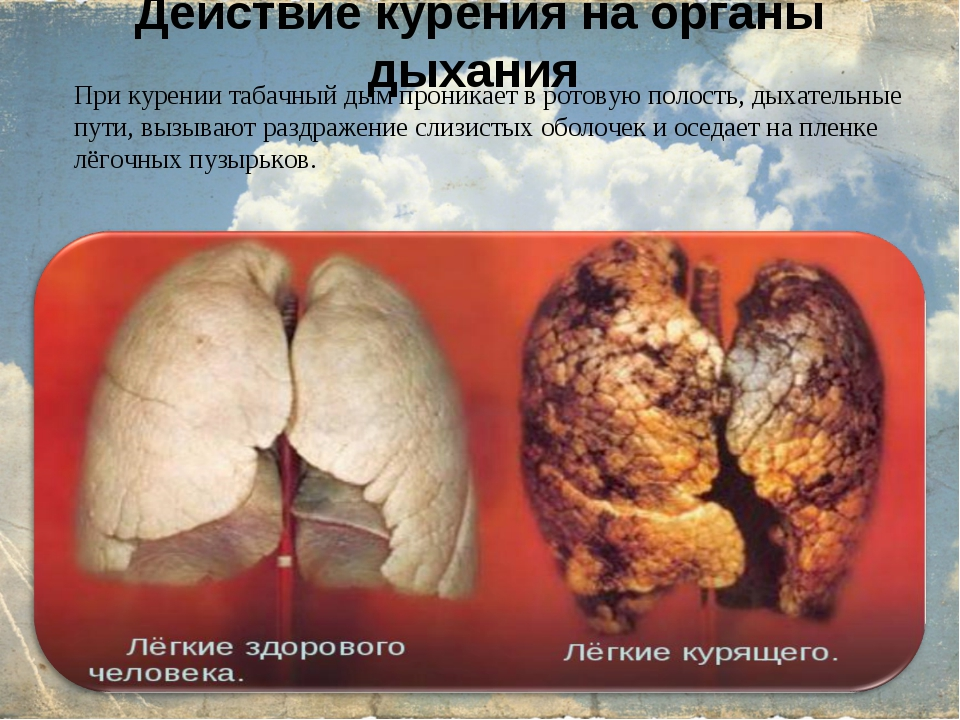 Действие курения на органы дыхания При курении табачный дым проникает в ротов...