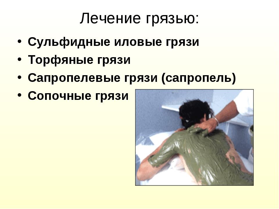 Лечение грязью: Сульфидные иловые грязи Торфяные грязи Сапропелевые грязи (са...