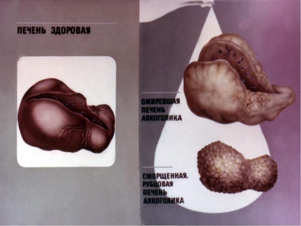 Организм пьющего человека картинки