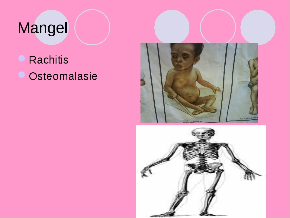 Mangel Rachitis Osteomalasie
