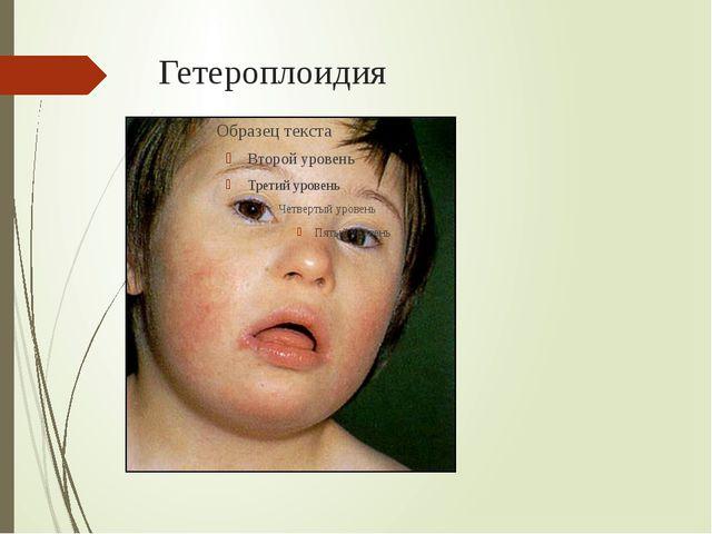 Гетероплоидия