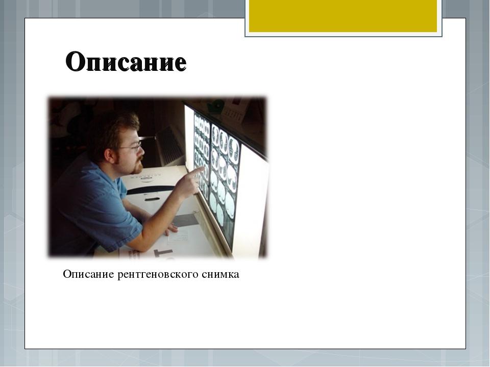 Описание Описание рентгеновского снимка