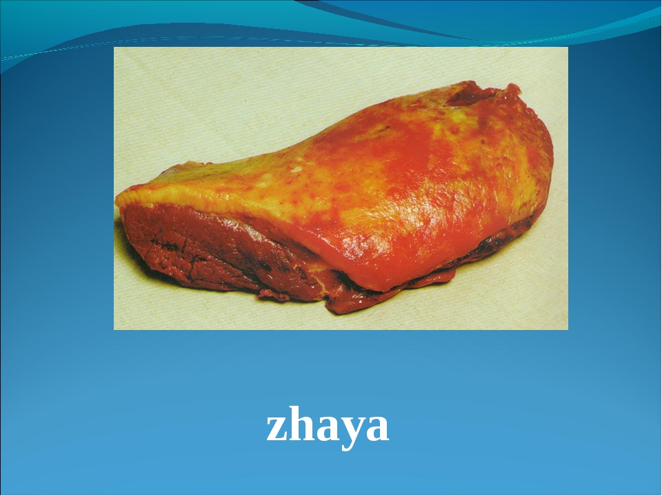 zhaya