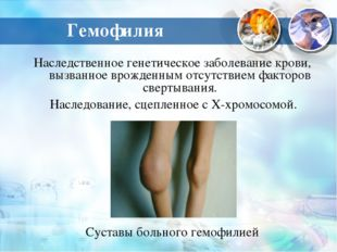 Гемофилия Наследственное генетическое заболевание крови, вызванное врожденным