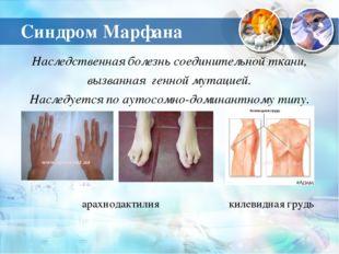 Синдром Марфана Наследственная болезнь соединительной ткани, вызванная генной