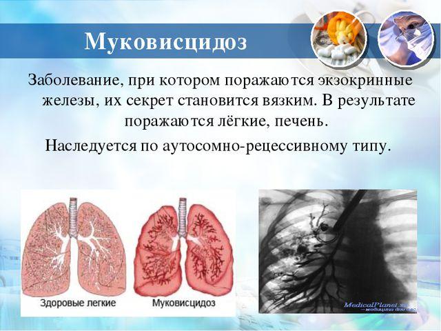 Муковисцидоз Заболевание, при котором поражаются экзокринные железы, их секре...