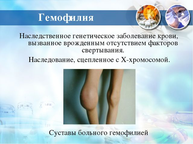 Гемофилия Наследственное генетическое заболевание крови, вызванное врожденным...