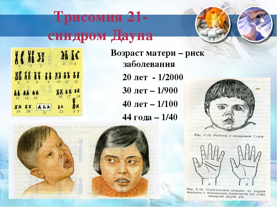 Трисомия 21- синдром Дауна Возраст матери – риск заболевания 20 лет - 1/2000...