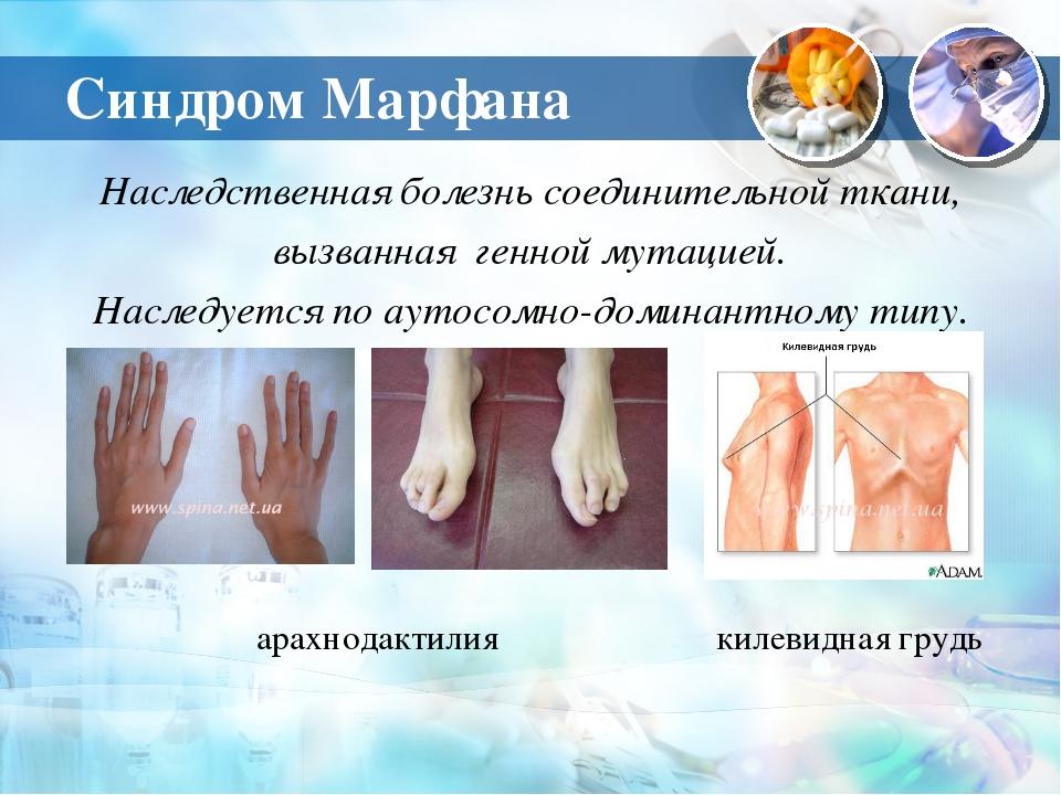 Синдром Марфана Наследственная болезнь соединительной ткани, вызванная генной...