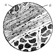 Рис. 11. Поперечнополосатая скелетная мышечная ткань