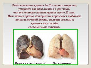 Люди начавшие курить до 15 летнего возраста, умирают от рака легких в 5 раз
