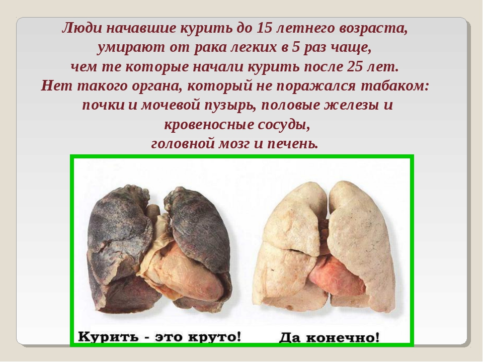 Люди начавшие курить до 15 летнего возраста, умирают от рака легких в 5 раз...