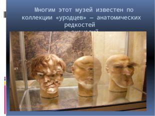 Многим этот музей известен по коллекции «уродцев»— анатомических редкостей