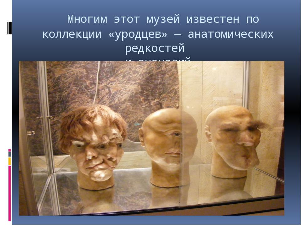 Многим этот музей известен по коллекции «уродцев»— анатомических редкостей...