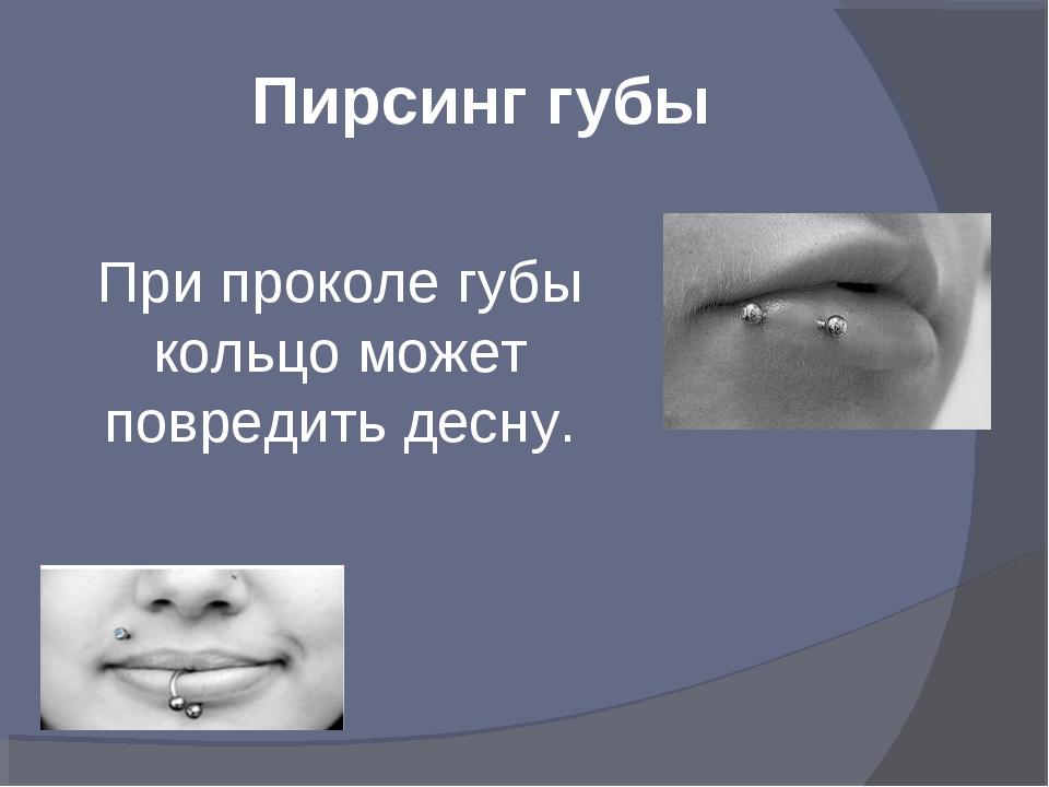 Пирсинг губы При проколе губы кольцо может повредить десну.