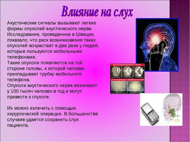 Акустические сигналы вызывают легкие формы опухолей акустического нерва. Иссл...
