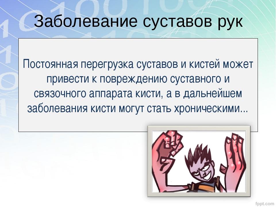 Заболевание суставов рук Постоянная перегрузка суставов и кистей может привес...