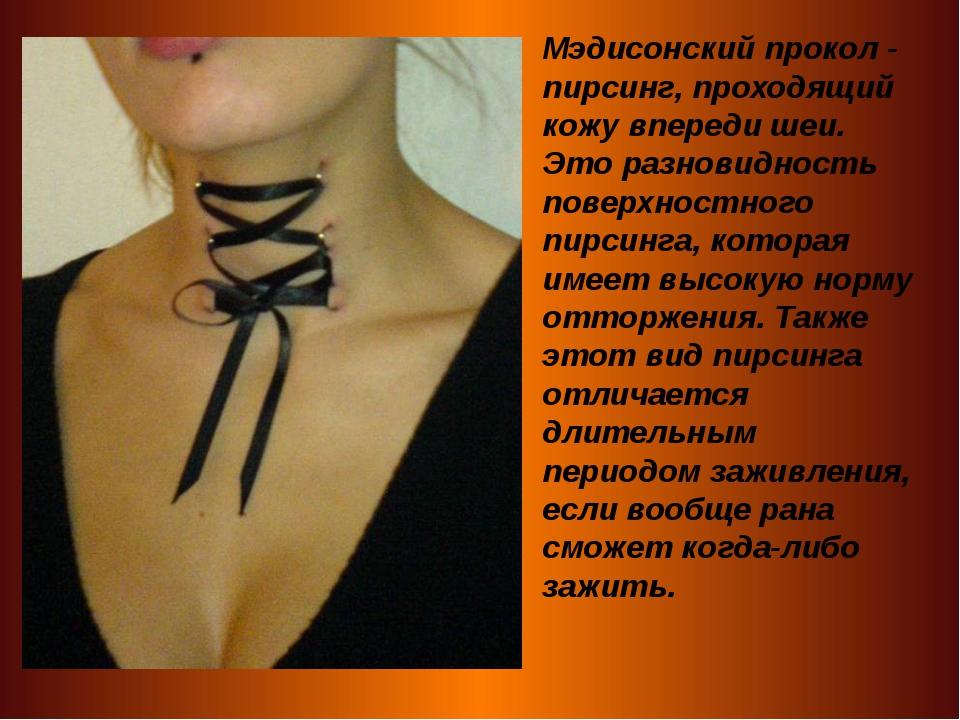 Мэдисонский прокол - пирсинг, проходящий кожу впереди шеи. Это разновидность...