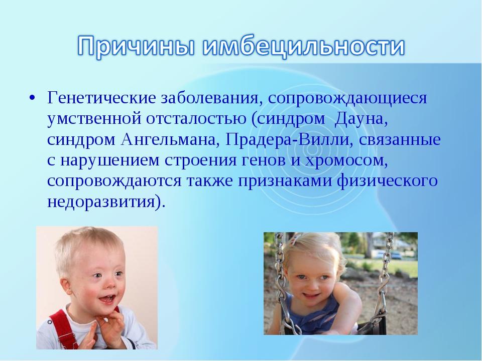 Генетические заболевания, сопровождающиеся умственной отсталостью (синдром Да...