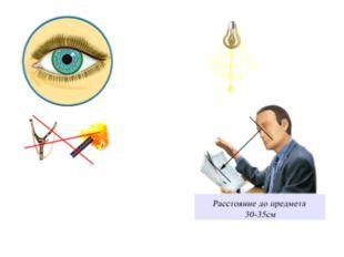 Близорукость Причины: Врожденная близорукость вызвана удлинением глазного ябл