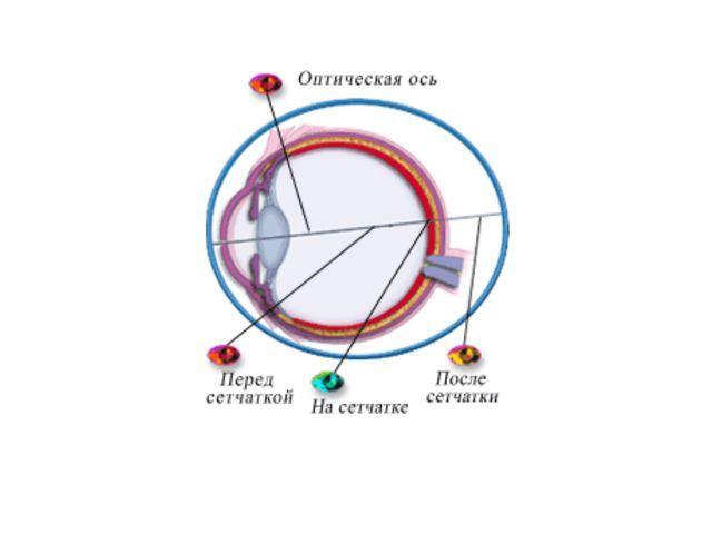 Цветовая слепота (дальтонизм) – нарушение деятельности колбочек