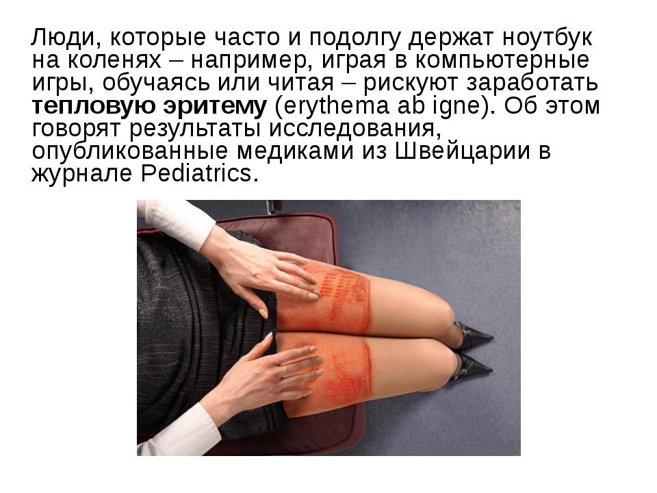 Люди, которые часто и подолгу держат ноутбук на коленях – например, играя в...