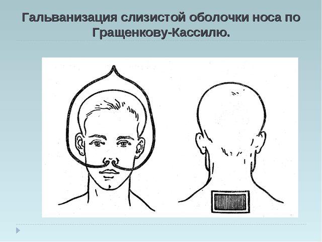 Гальванизация слизистой оболочки носа по Гращенкову-Кассилю.