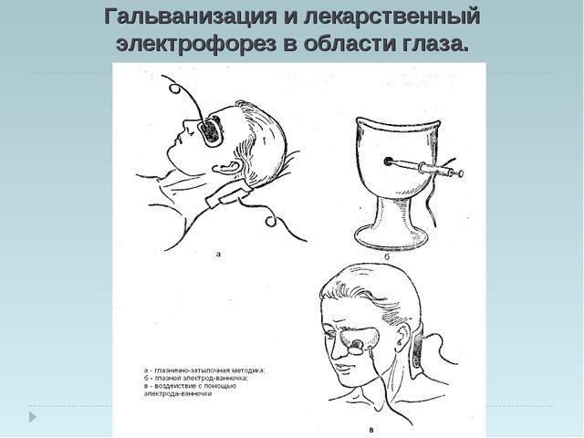 Гальванизация и лекарственный электрофорез в области глаза.