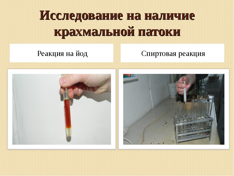 Исследование на наличие крахмальной патоки Реакция на йод Спиртовая реакция