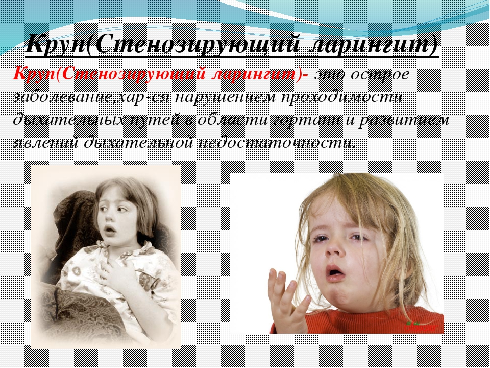 Круп(Стенозирующий ларингит) Круп(Стенозирующий ларингит)- это острое заболев...