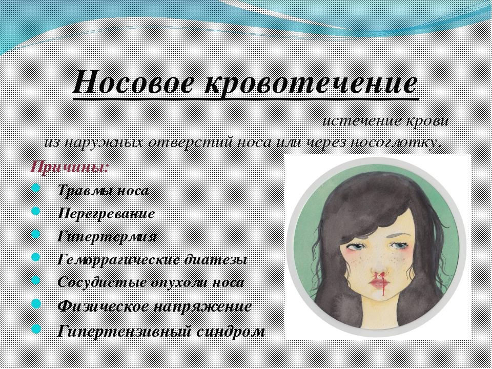 Носовое кровотечение Носово́е кровотече́ние (epistaxis)- истечение крови из н...