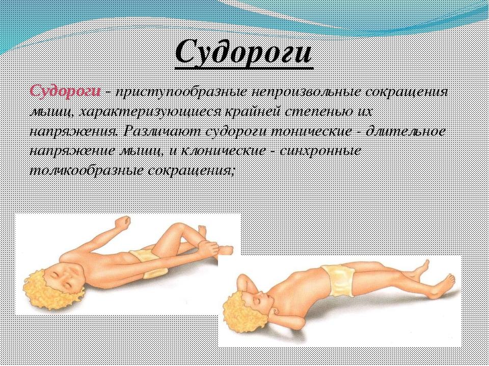 Судороги Судороги - приступообразные непроизвольные сокращения мышц, характер...