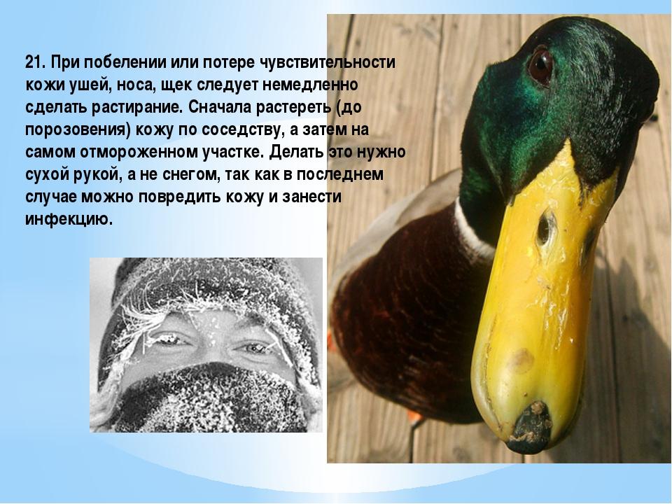 21. При побелении или потере чувствительности кожи ушей, носа, щек следует не...