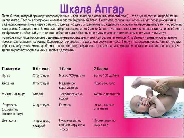Первый тест, который проходят новорожденные (и большинство с хорошими показат...