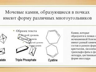 Мочевые камни, образующиеся в почках имеют форму различных многоугольников Ка
