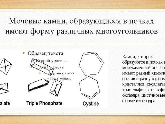 Мочевые камни, образующиеся в почках имеют форму различных многоугольников Ка...