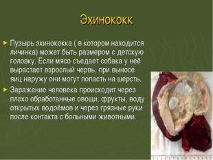 Эхинококк Пузырь эхинококка ( в котором находится личинка) может быть размеро