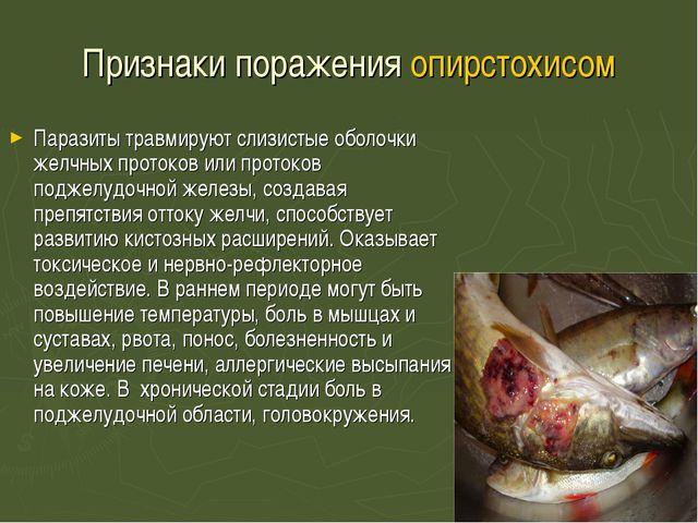 Признаки поражения опирстохисом Паразиты травмируют слизистые оболочки желчны...