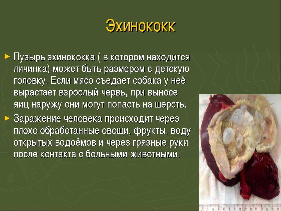 Эхинококк Пузырь эхинококка ( в котором находится личинка) может быть размеро...