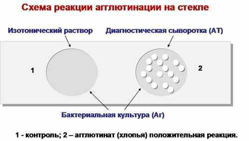 http://collegemicrob.narod.ru/immunology/img/ra.jpg