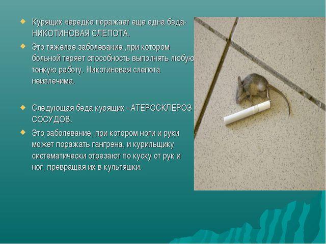 Курящих нередко поражает еще одна беда-НИКОТИНОВАЯ СЛЕПОТА. Это тяжелое забол...