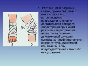 Растяжения и разрывы связок, сухожилий, мышц относятся к часто встречающимся