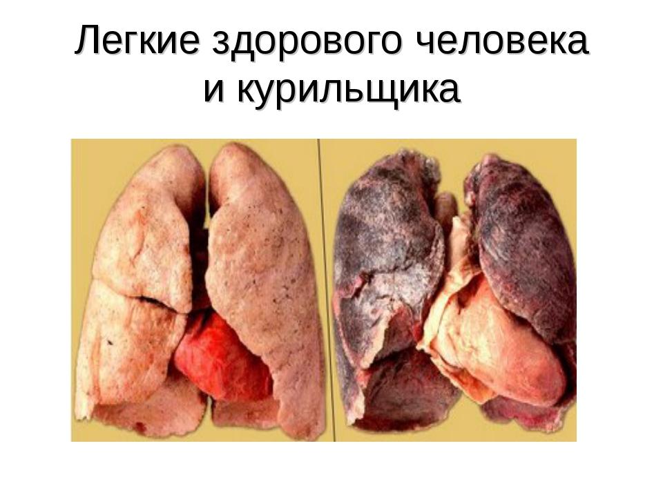 Что делает курение с легкими