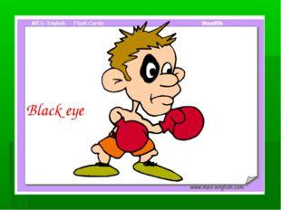 Black eye Black eye