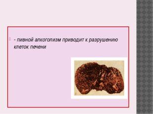 - пивной алкоголизм приводит к разрушению клеток печени