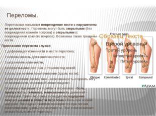 Переломы. Переломами называют повреждение кости с нарушением ее целостности.