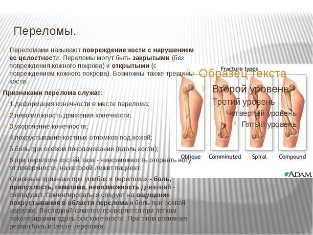 Переломы. Переломами называют повреждение кости с нарушением ее целостности....