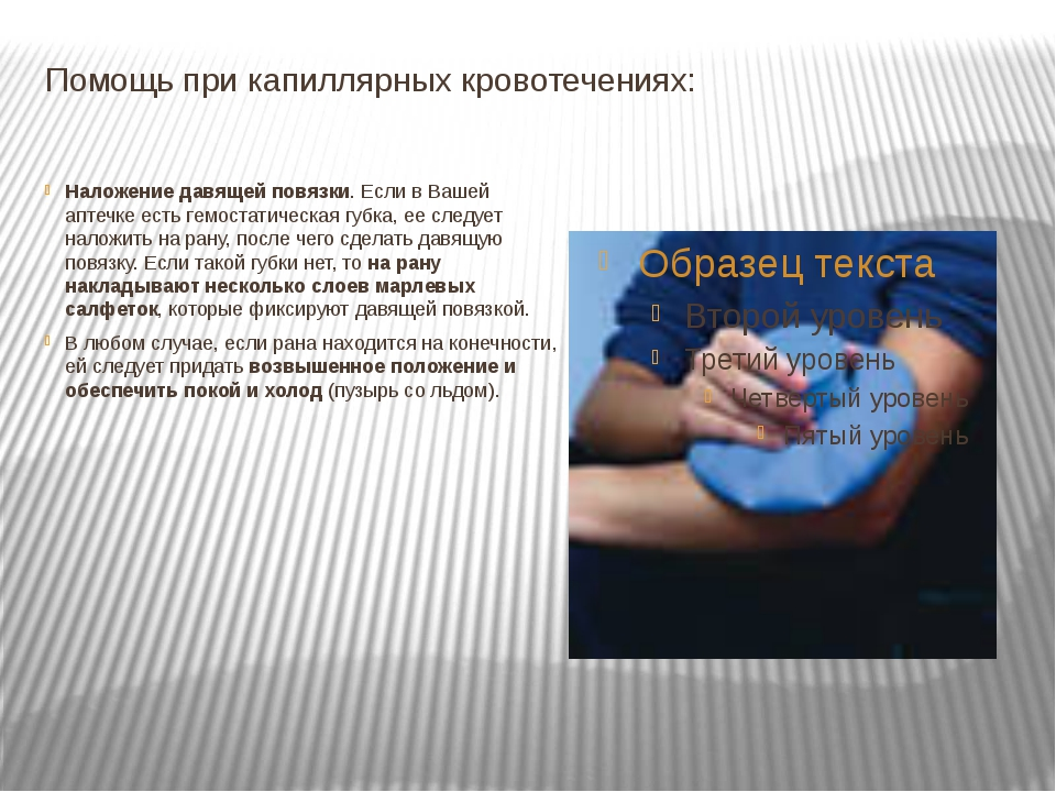 Помощь при капиллярных кровотечениях: Наложение давящей повязки. Если в Вашей...