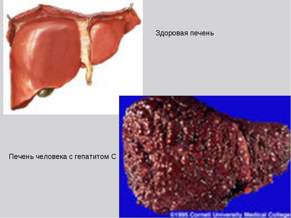 Здоровая печень Печень человека с гепатитом С