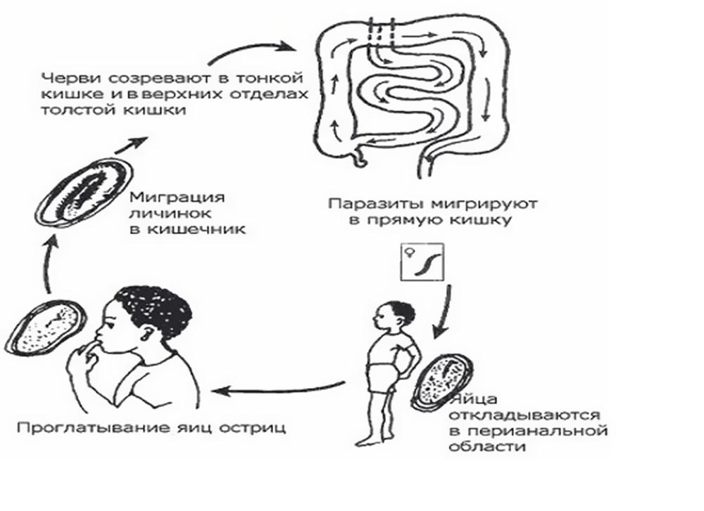 enterobioz-shema-zaragenia